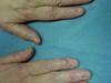 Гигантоклеточная опухоль влагалища сухожилий, анонихия и птеригиум. №1707