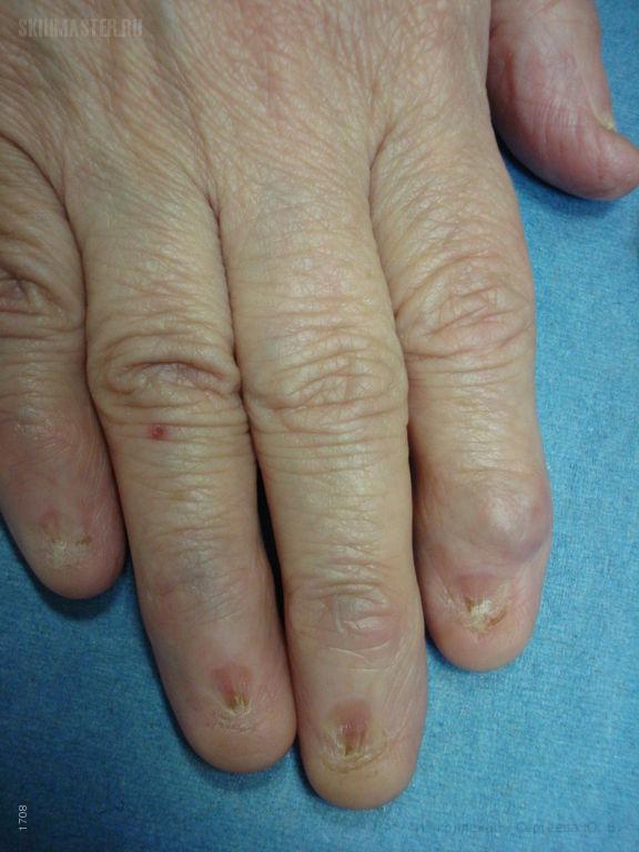 Гигантоклеточная опухоль влагалища сухожилий, анонихия и птеригиум