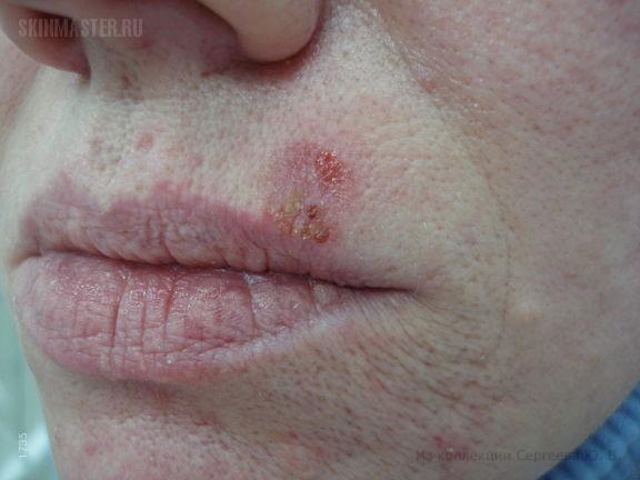 Поверхностная базалиома на губе