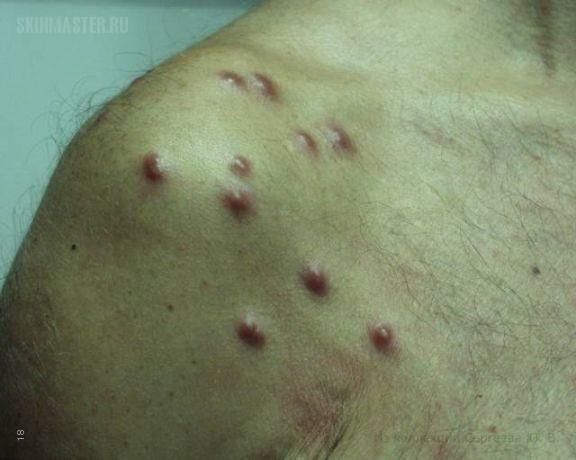 Доброкачественная лимфоплазия кожи, вызванная укусами пиявок