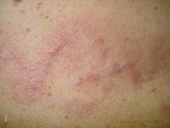 В-клеточная злокачественная лимфома кожи