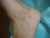 Ятрогенная рубцово-пигментная атрофия кожи. №1859