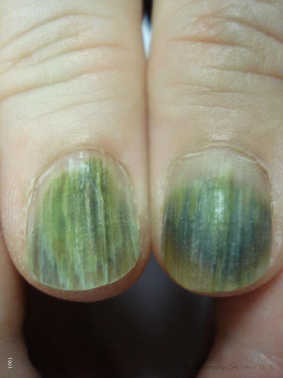 Синдром зеленых ногтей