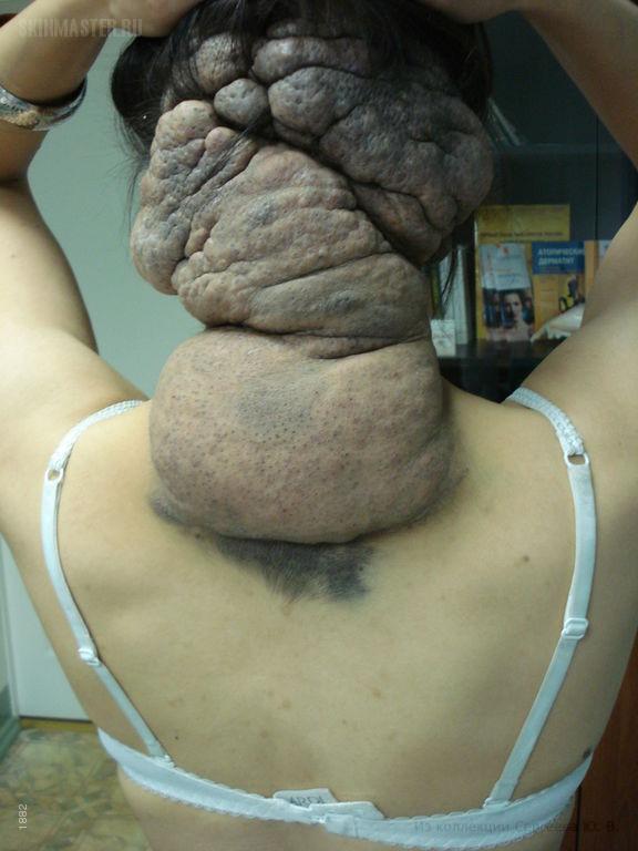 Гигантский врожденный невус