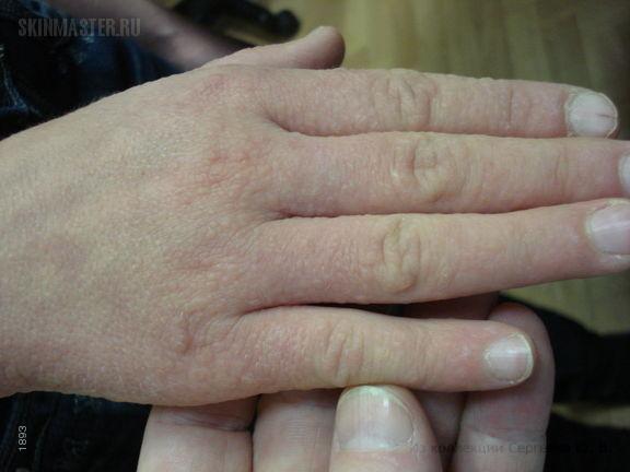 Болезнь Дарье с явлениями точечной кератодермии ладоней и подошв
