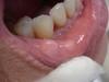 Фиброма слизистой рта. №1988