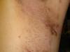 Гидраденит и черный акантоз у больного гепатитом С. №1990