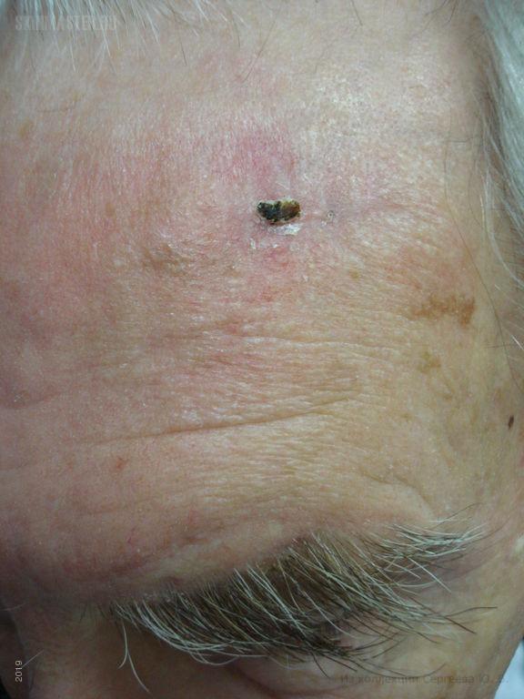 Актинический кератоз и плоскоклеточный рак кожи
