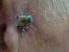 Карцинома плоскоклеточная. Клинические фото #2021