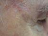 Карцинома плоскоклеточная. Клинические фото #2023