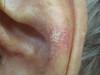 Карцинома плоскоклеточная. Клинические фото #2024