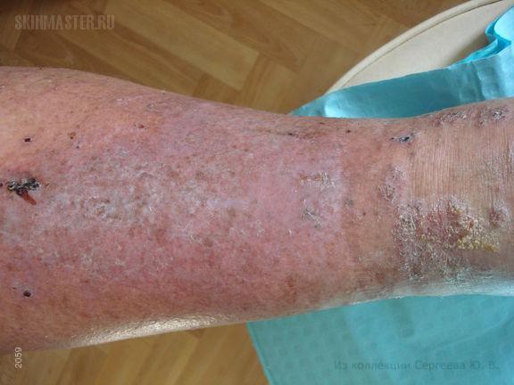 Хроническая венозная недостаточность: варикозная экзема, белая атрофия кожи и гиперпигментация