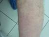 Экзема Капоши. Клинические фото #2072
