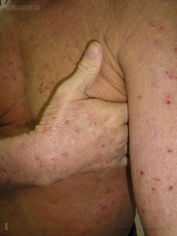 Диффузный нейродермит – атопический дерматит развившийся в позднем возрасте