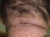 Диффузный нейродермит – атопический дерматит развившийся в позднем возрасте. №2094