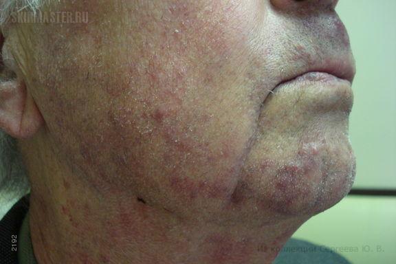 Гранулема Майокки на лице и венозные озерца губ и век
