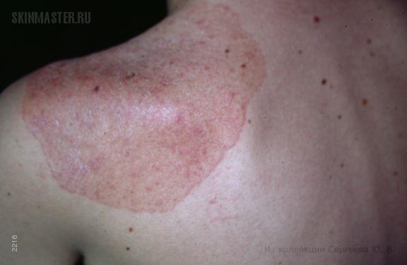 Хронический кандидоз кожи и слизистых как проявление АРС синдрома 1-го типа.