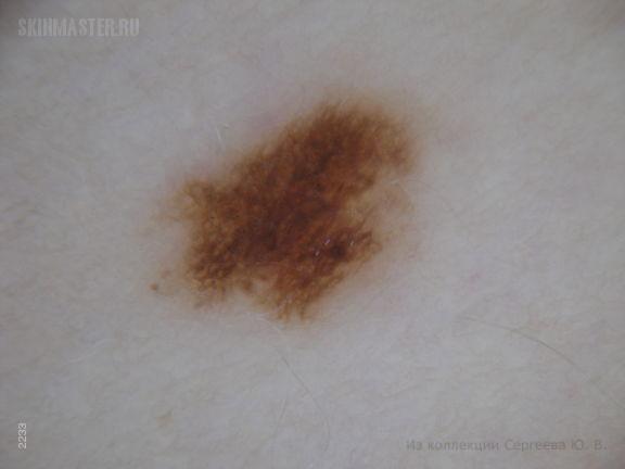 Меланома, диспластический невус, меланоцитарные невусы