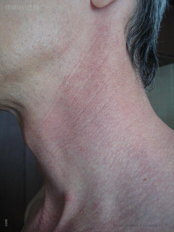 Межфолликулярный эритромеланоз шеи и гепатит-С
