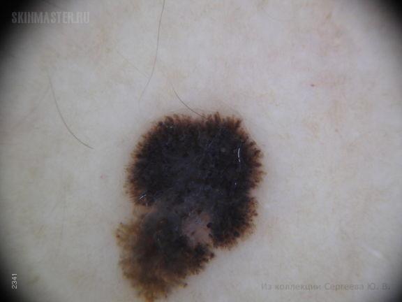 Меланома, поверхностно-распространяющаяся форма