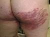 Стероидная паховая дерматофития. №2351