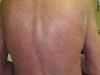 Сидром Сезари: Т-клеточная лимфома кожи. №2467