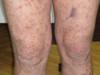 Криоглобулинемия. Клинические фото #2483
