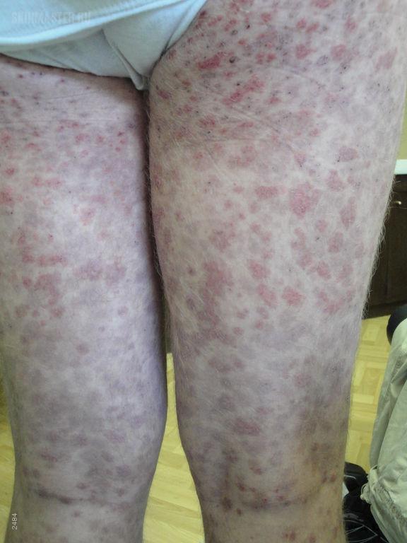 Криоглобулинемическая пурпура