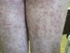 Криоглобулинемия. Клинические фото #2484