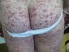 Криоглобулинемия. Клинические фото #2485