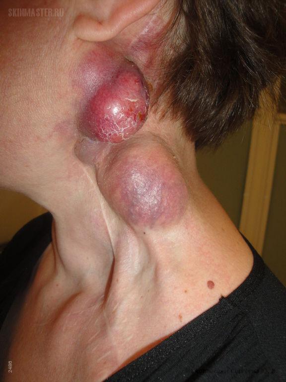 Рак кожи нейроэндокринный (опухоль Меркеля).