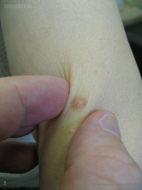 Дерматофиброма