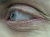 Блефарит. Клинические фото #377