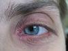 Блефарит. Клинические фото #378