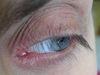 Блефарит. Клинические фото #380