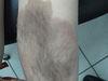 Невус врожденный меланоцитарный. Клинические фото #473