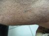 Невус врожденный меланоцитарный. Клинические фото #476