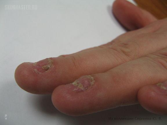 Множественный подногтевой экзостоз (MES-синдром)