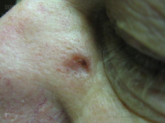 Базалиома и воспаление