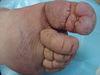 Рожа. Клинические фото #534
