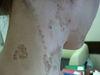 Невус Сеттона (halo nevus). Клинические фото #546