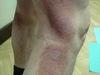 Микоз грибовидный. Клинические фото #554
