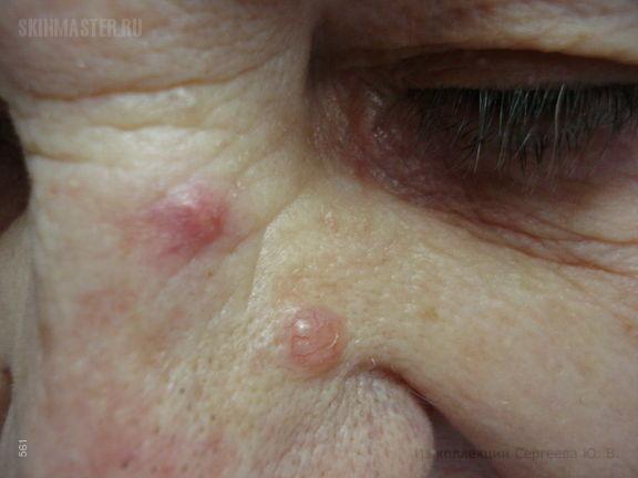 Базалиома и фурункул на носу