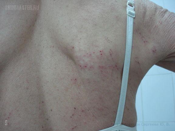 Атопический дерматит, развившийся в позднем возрасте