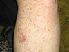Аллергический васкулит кожи. №637