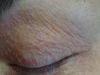 Дерматит периоральный. Клинические фото #690