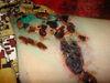 Пемфигоид буллезный. Клинические фото #693