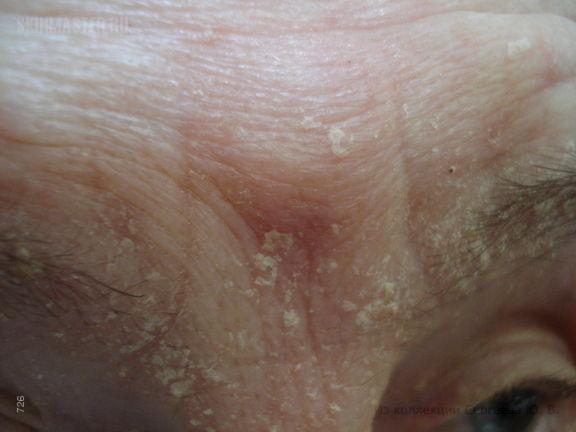 Себорейная экзема (seborrhea crustosa)