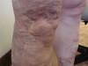 Синдром Клиппеля-Тренонея и болезнь Шамберга. №812