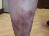 Синдром Клиппеля-Тренонея и болезнь Шамберга. №814